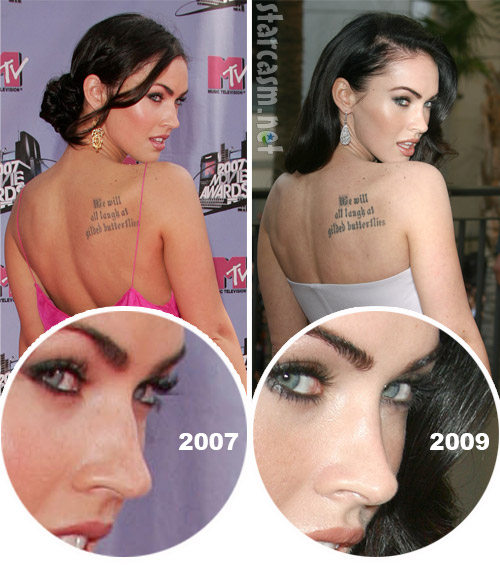 Megan-Fox-Plastic-Surgery