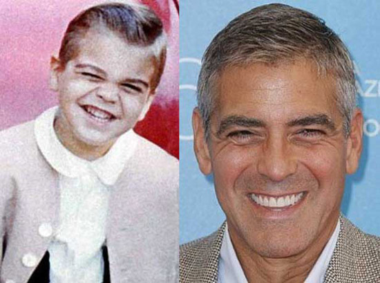 before-after-little-clooney