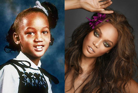 before-after-tyra-banks